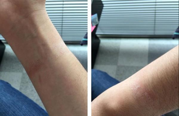Apple Watch могут вызывать раздражение кожи