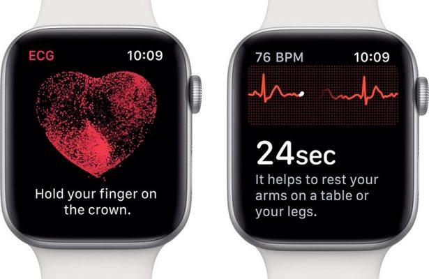 Какие Apple Watch лучше купить в 2019 году